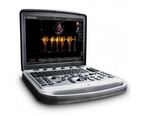 Портативная ультразвуковая диагностическая система «CHISON Sonotouch»  с принадлежностями, вариант исполнения SONOTOUCH 80, Китай